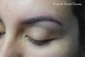 449 - Before 2 (Microblading)