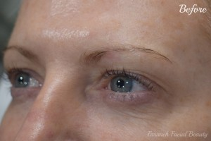 463 - Before 2 (Microblading)