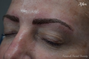 464 - After 2 (Microblading)