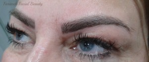 414 - After 2 (Microblading)